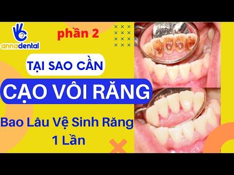 vệ sinh răng tại Kemtrinam.vn