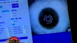 Laser Eye Surgery by Dr. Cory Lessner on UNIVISION