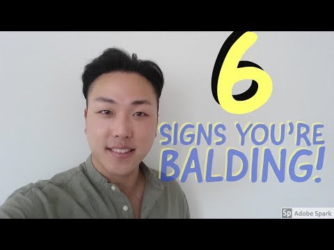 6 Early Signs of Balding - Male Pattern Baldness