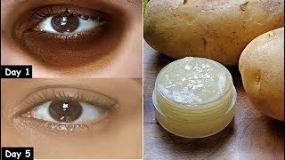 i Removed DARK CIRCLES in 5 Days with Potato Aloevera Eye Gel | Remove Eye Wrinkles & Under Eye bags