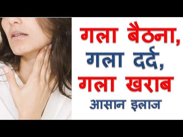 ??? ????? ?? ???? Gala Baithna Gala Kharab Gala Dard ka ilaj Sore Throat Home Remedies in Hindi