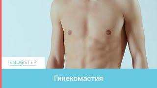 видео Как проходит удаление гинекомастии