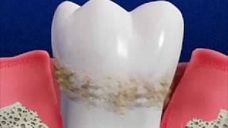 Беременность и зубы 2_armdent.am(, 2010-06-15T12:27:35.000Z)