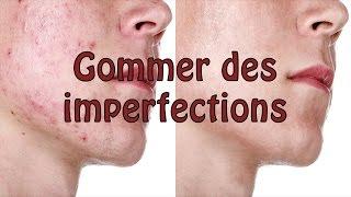 PHOTOSHOP Tutoriel - Gommer des imperfections (acné, etc.) d'un visage