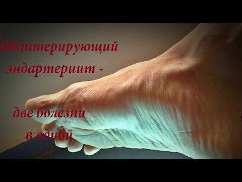 Облитерирующий эндартериит - две болезни в одной