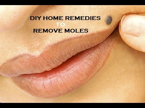 Moles of different skin types on