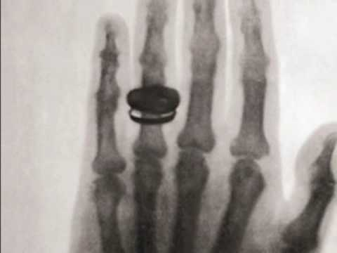 1896 The First X-Ray