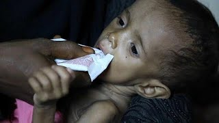 More than one million malnourished young children in war-torn Yemen are at risk of cholera