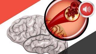 뇌졸중이 오기 1달 전 나타나는 증상들
