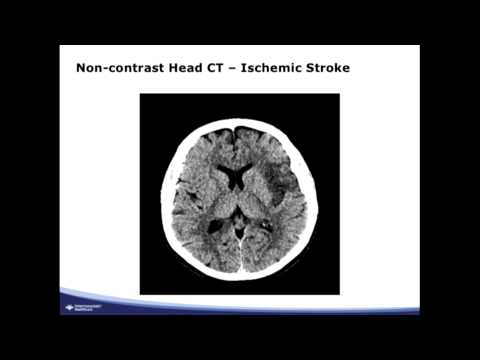June 2015 EMS lecture series - Stroke