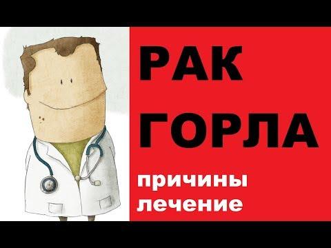 Первые признаки рака горла, диагностика и лечение