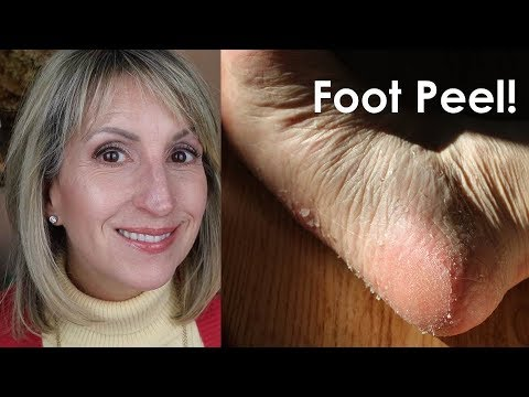 BEST FOOT PEEL MASK -  SOFT TOUCH - REVIEW!