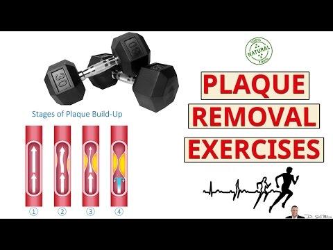 2 Best Exercises For Removing Calcium Deposits & Plaque
