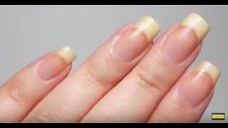 укрепление ногтей - Как отрастить длинные и здоровые ногти