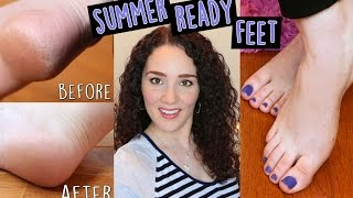 How to Remove Dead Skin for Summer Ready Feet