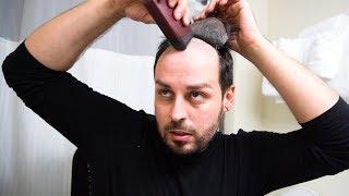 alopecia hair piece