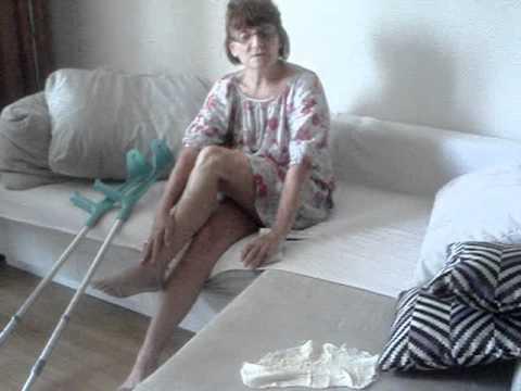 Первая помощь при растяжении! Обезболивающая мазь спасла от гипса