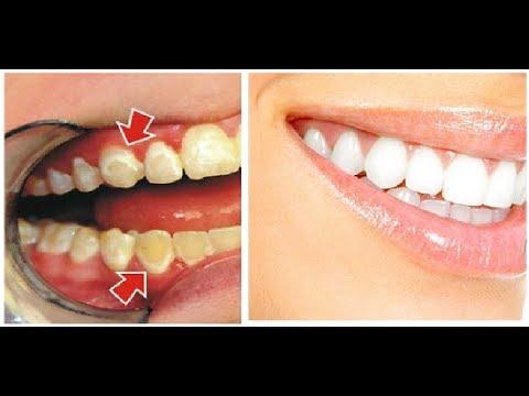 Tak Terduga 15 Cara Membersihkan Karang Gigi Secara Alami Dan
