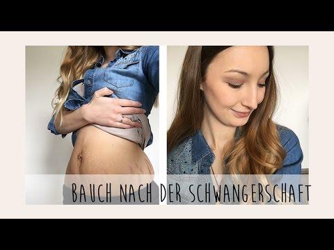 Babybauch Nach Der Schwangerschaft/Geburt - Mit Bildern
