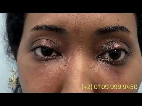 علاج انتفاخ العين والهالات السوداء تحت العين في دار الجمال - الدكتور ابراهيم كامل