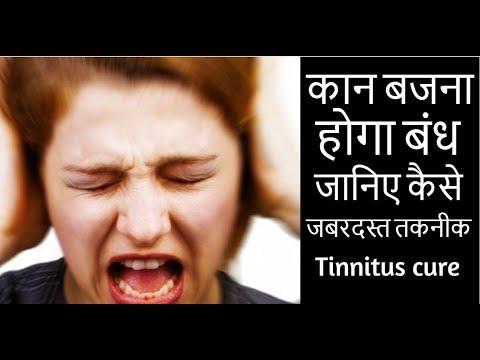 कान बजना होगा बंध जानिए कैसे  जबरदस्त तकनीक tinnitus cure