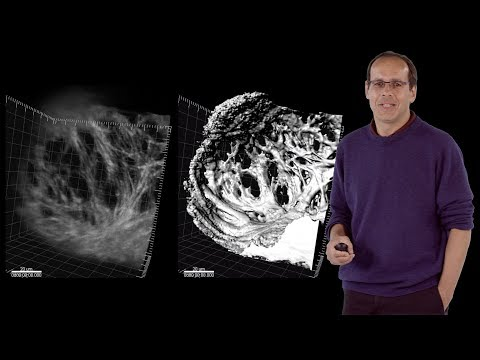 Didier Stainier (MPI) 1: Vertebrate Organ Development: The Zebrafish Heart