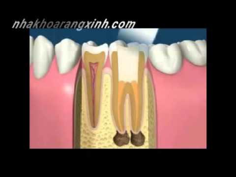 điều trị tủy răng-nha khoa rang xinh