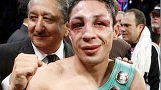 Israel Vazquez Will Lose His Right Eye