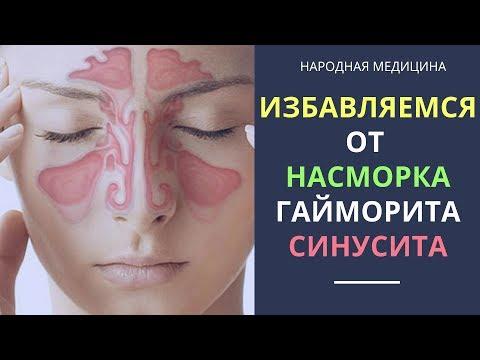 Как вылечить заложенность носа с помощью алоэ. Народная медицина