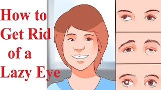 How to Get Rid of a # Lazy Eye