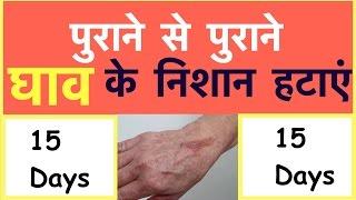 जलने पर घाव  के निशान झट से आराम  | Heal burn fast | How to heal burn scars