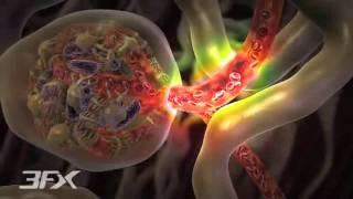 Pernas nas nefropatia dor diabética
