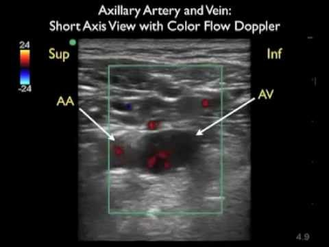 How To: Axillary Vein Cannulation - SonoSite Ultrasound.mp4