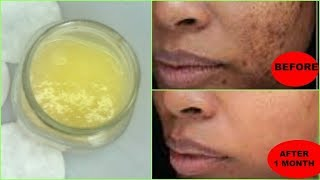 REMOVE DARK SPOTS, BLACK SPOTS, ACNE SCARS NATURALLY AND FAST, GET FLAWLESS SKIN Khichi Beauty thumbnail