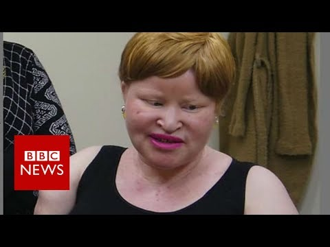 Tanzania albino attacks: 'My neighbour hacked off my hands' - BBC News