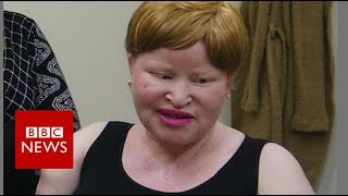Tanzania albino attacks: 'My neighbour hacked off my hands' - BBC News thumbnail