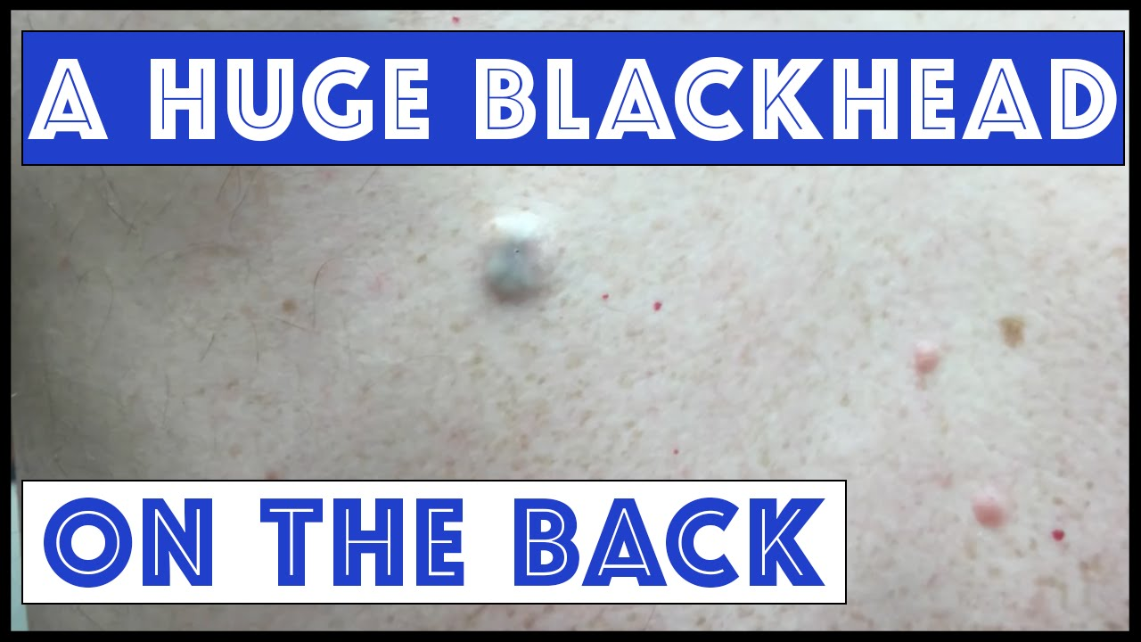 giant blackheads removal - photo #47