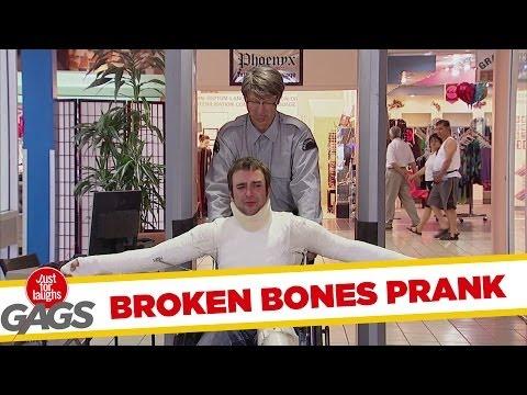 Broken Bones Prank