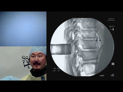 Minimally Invasive Spine Surgery - Jeffrey S. Roh, MD, MBA