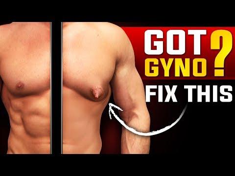 Get Rid Of Man Boobs (CHEST FAT / GYNECOMASTIA FIX)