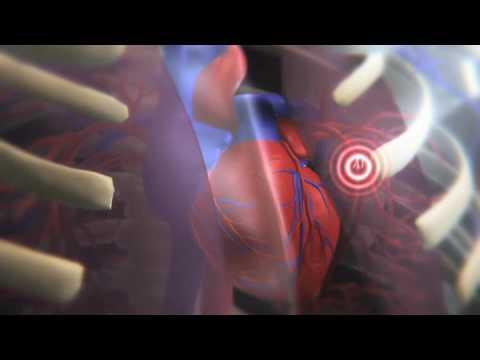 operazione prostata coaguli di sangue youtube