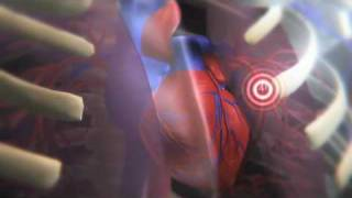 How a Clot Can Become a Pulmonary Embolism