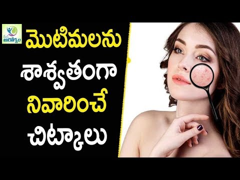 how-to-remove-pimples-permanently-at-home---telugu-health-tips-in-telugu-||-mana-arogyam