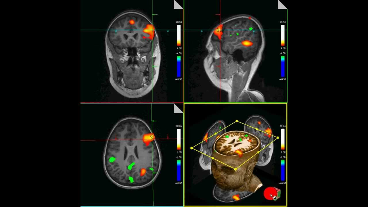 functional magnetic resonance imaging and phrenology essay