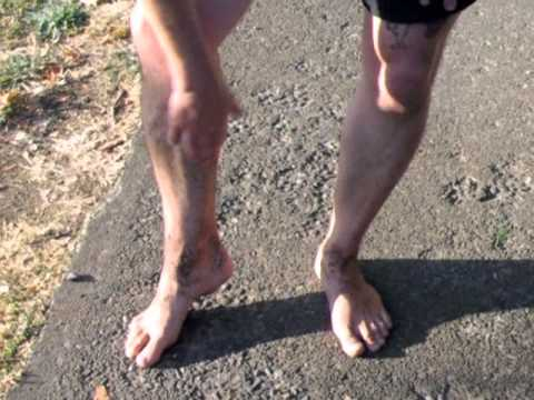correcting-over-pronation-with-barefoot-running