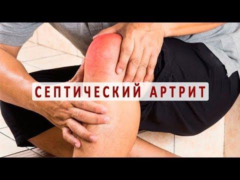 Что нужно знать о септическом артрите