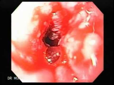 Esophagus Cancer of th...