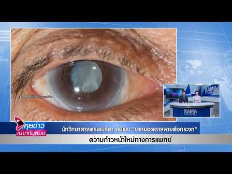 นักวิทยาศาสตร์อเมริกาค้นพบ ยาหยอดตาสลายต้อกระจก : พบหมอรามา ช่วง คุยข่าวเมาท์กับหมอ 18 มิ.ย.61(2/7)