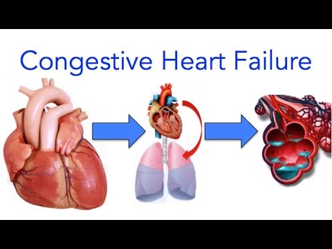 Congestive Heart Failure Chf Explained Made Easy Youtube