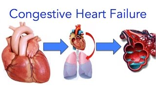 Congestive Heart Failure (CHF) Explained - MADE EASY